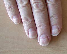 Enfermedades en las uñas